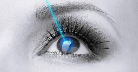 représentation de la chirurgie oculaire au laser