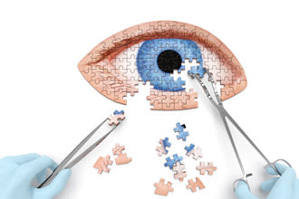 eye surgeon assembling puzzle pieces with medical tools