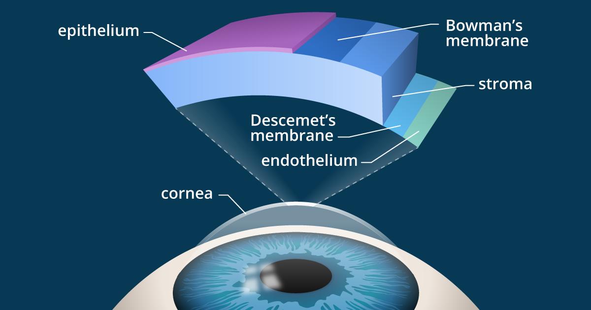Kamra inlay and corneal implants for presbyopia