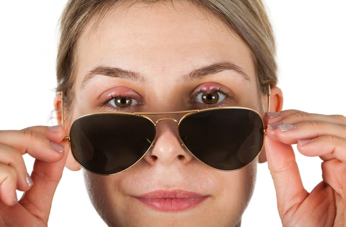 A young woman is slightly lowering her aviator sunglasses to reveal a stye on her left eye.