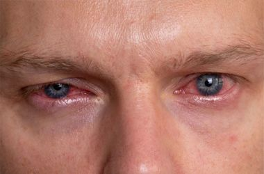 Man suffering from eye discharge from an infection