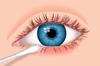 Blepharitis Illustration - cleaning