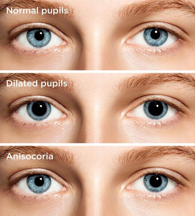 Dilated Pupils & Pupil Dilation: Causes & Symptoms
