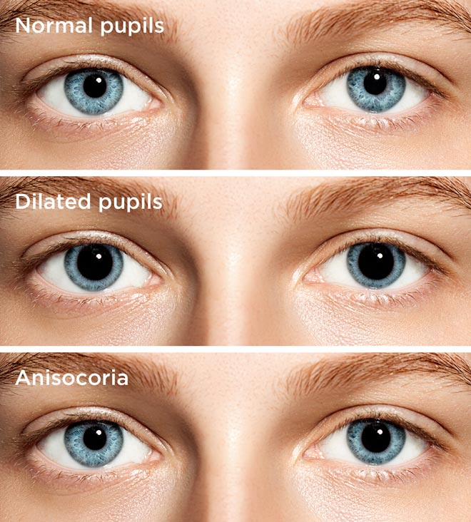 Differences between a normal pupil, a dilated pupil and anisocoria.