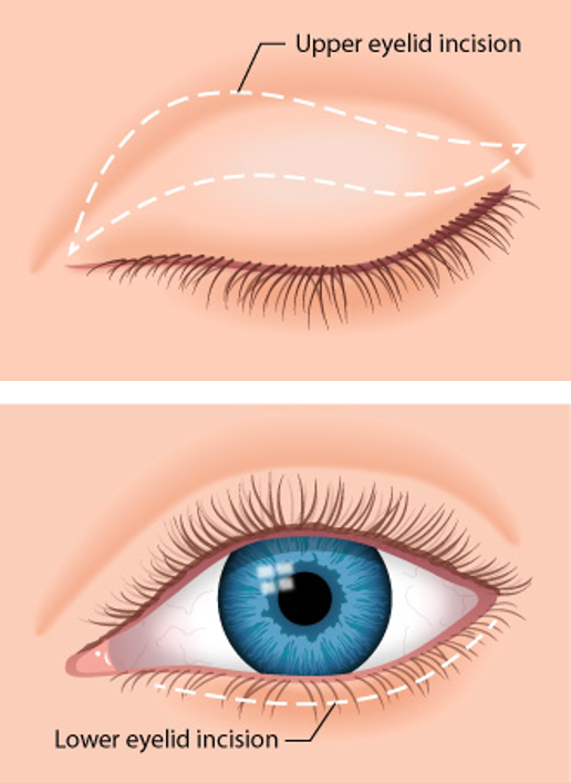 Eyelid Surgery (Blepharoplasty or Eye Lift) for a Youthful Look