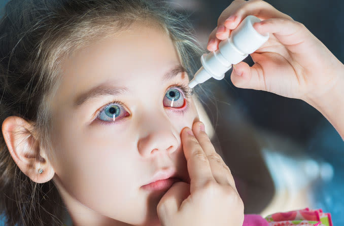 A girl uses eye drops for allergy relief