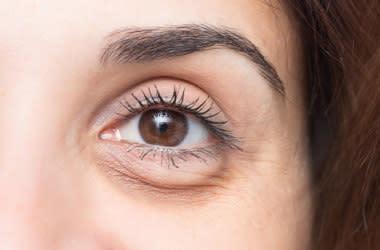 Göz kapağı düşüklüğü olan kadın