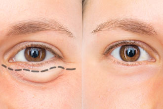 Upper/lower eyelid surgery photo