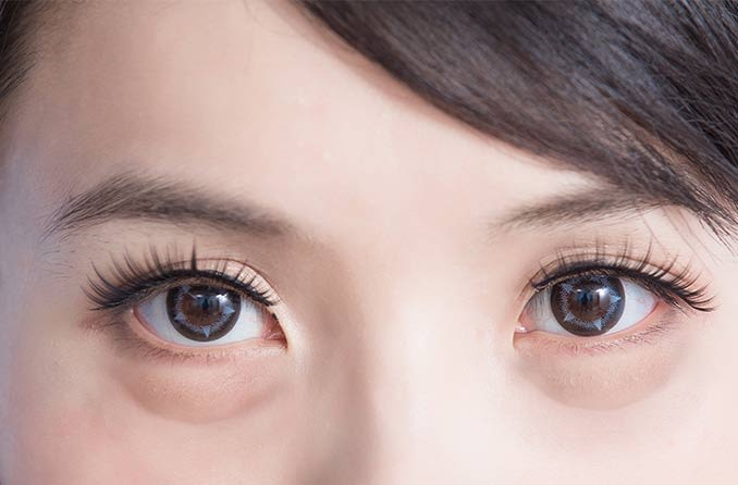 目の腫れのある女性