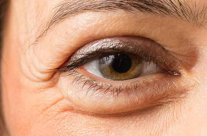 امرأة ذات عين منتفخة