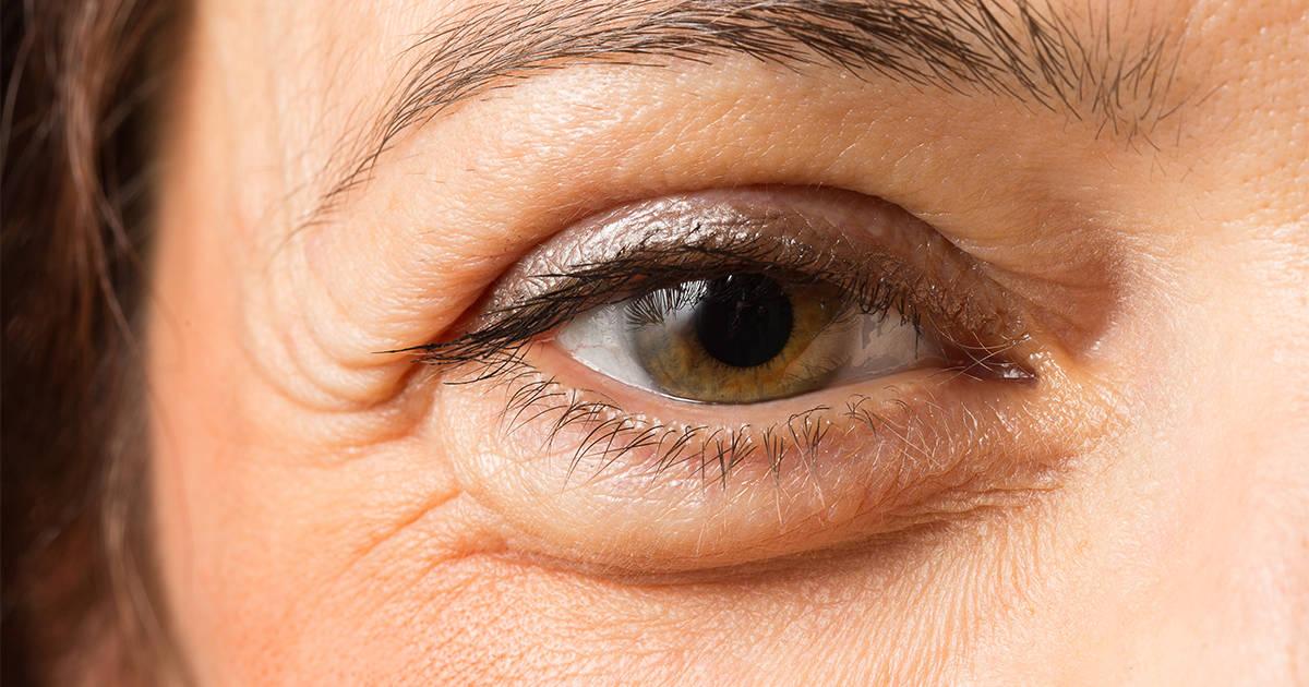 Mulher com olho inchado e com olheiras