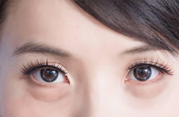 浮肿的眼睛的女人