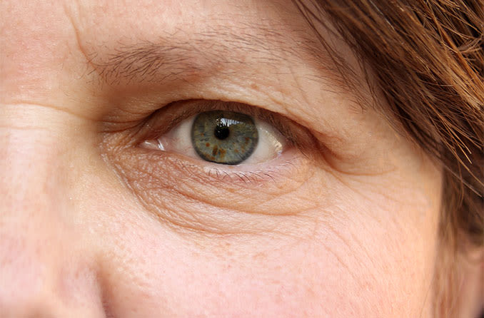 closeup of a woman with droopy eyelid (ptosis)