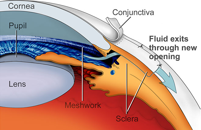 Glaucoma Surgery - AllAboutVision com