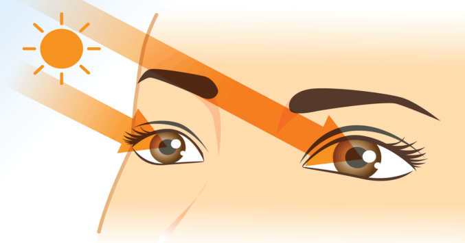 illustration of sun's UV rays falling on a person's eyes
