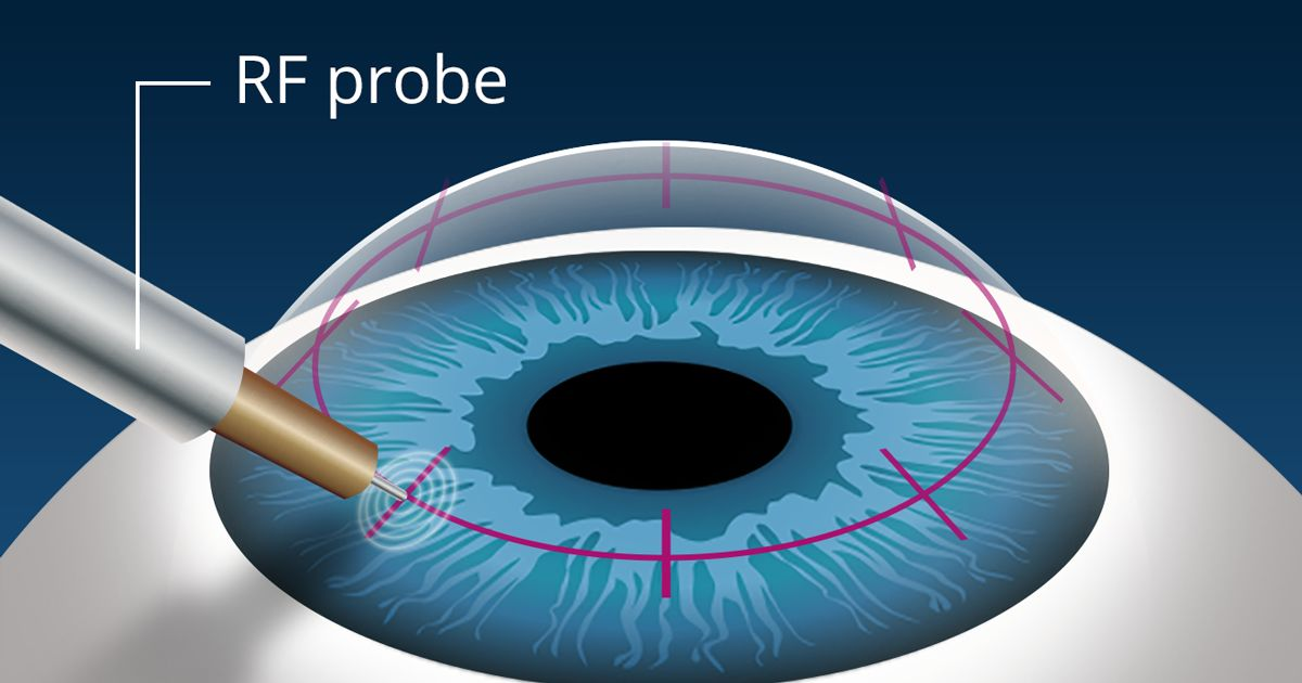 illustration of conductive keratoplasty (CK) procedure