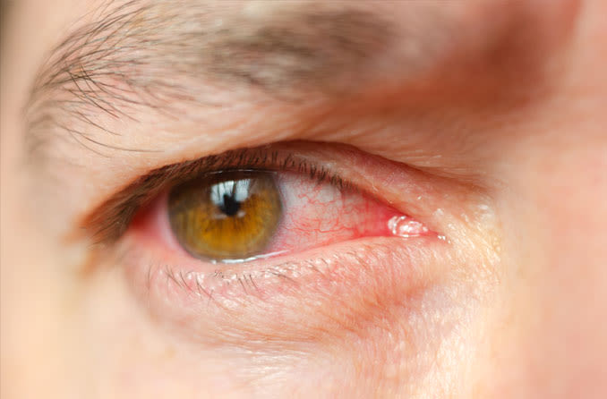 oeil irrité à cause d'une infection