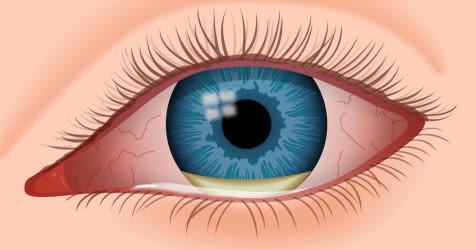 síntomas del parásito del ojo humano