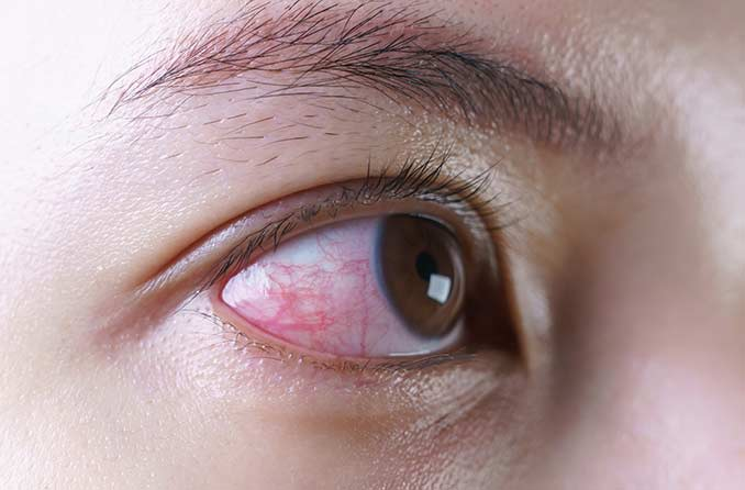 感染による目の炎症