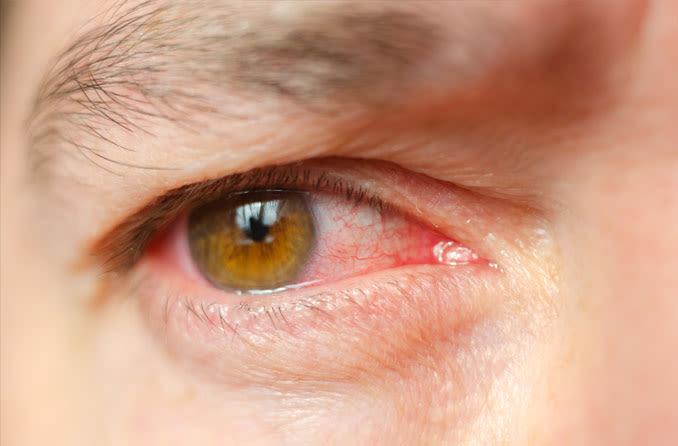 Homem com olhos irritados de infecção ocular
