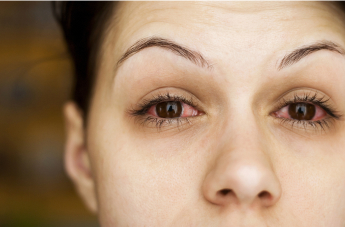 Is pink eye a symptom of COVID-19, a cold or the flu?