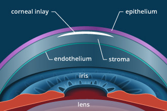 Corneal inlays for presbyopia correction
