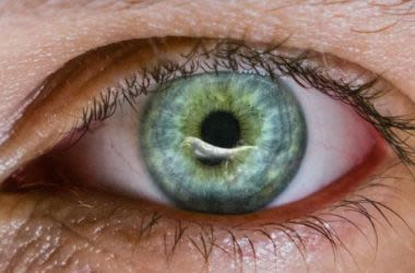 Corneal Abrasion of the eye