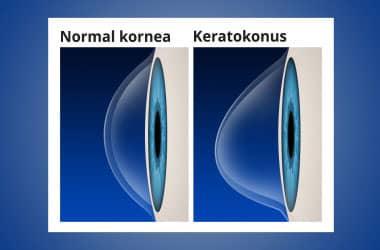 Normal kornea ve keratokonus