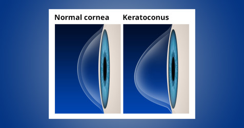 Normal cornea vs. keratoconus