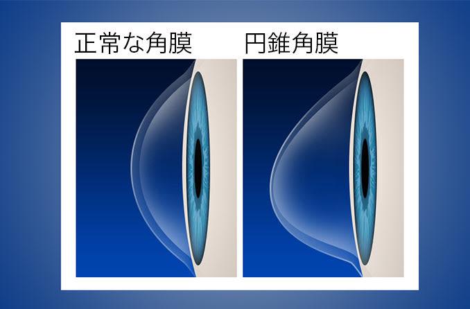 正常な角膜と円錐角膜