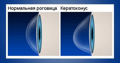 Нормальная роговица против кератоконуса