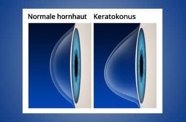 Normale Hornhaut vs. Keratokonus