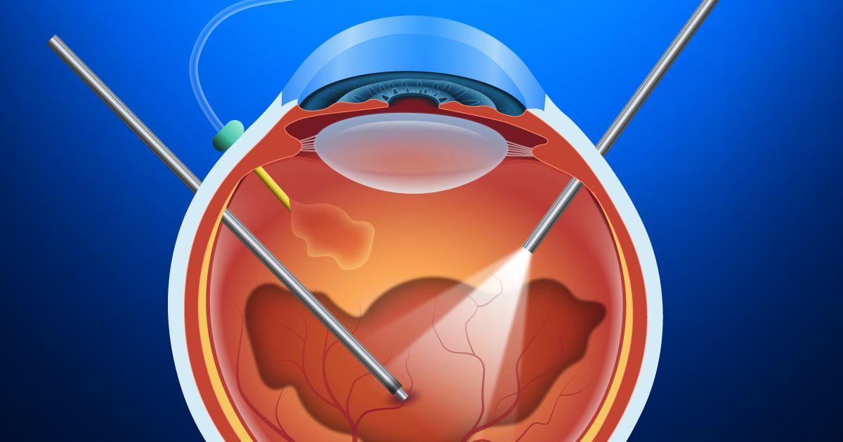 ilustración de vitrectomía