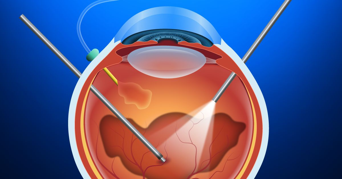 vitrectomy illustration
