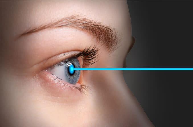 Femtosecond laser eases LASIK fears