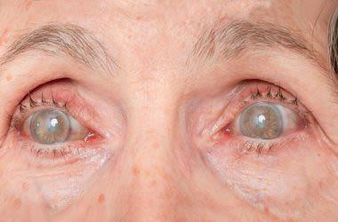 Elderly woman suffering symptoms of diabetic retinopathy