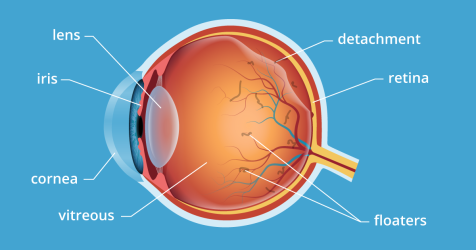 Vitreous detachment and floaters within the eye