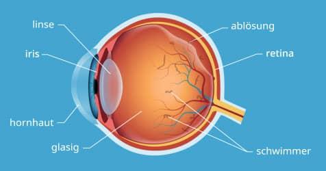 Glaskörperablösung und Schwimmer im Auge