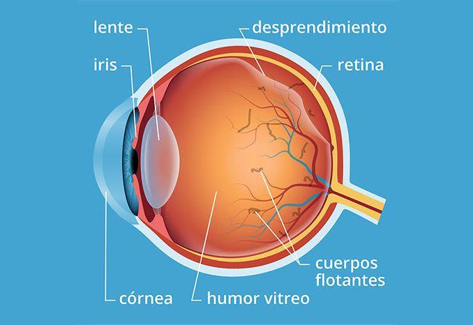 Descolamento vítreo e moscas volantes no olho