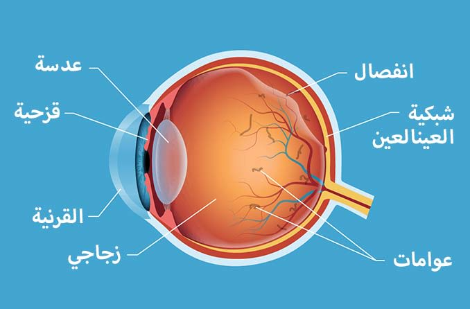 انفصال الجسم الزجاجي والعوامات داخل العين