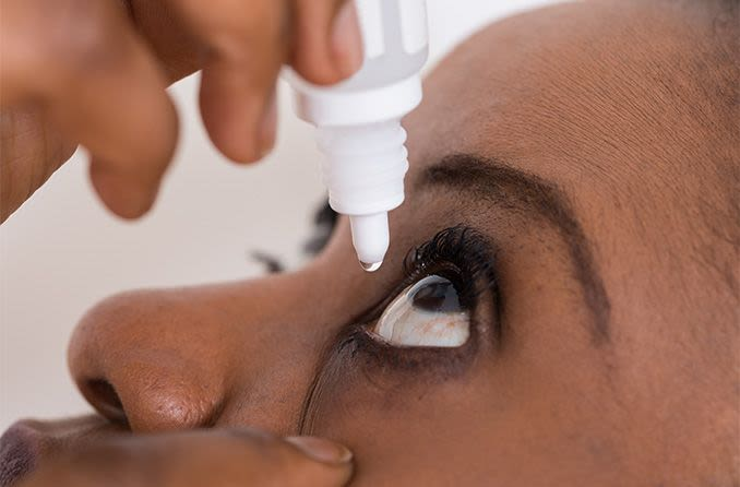 woman using eye drops to help whiten her eyes
