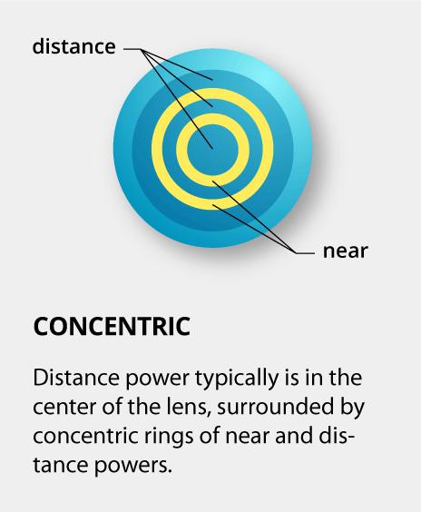 cfdba807f9d Multifocal contact lenses for presbyopia