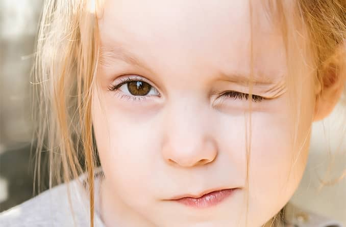 girl squinting and closing one eye due to pediatric astigmatism