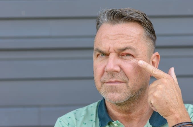 A man looks unhappy as he points to a bump on his eyelid.