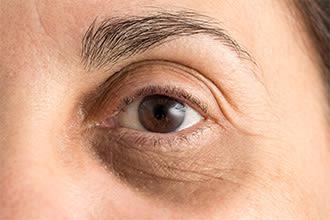 انتفاخ العينين كيفية التخلص من انتفاخ العينين