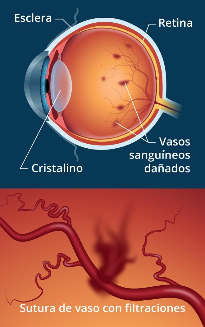 signos de diabetes que afectan los ojos