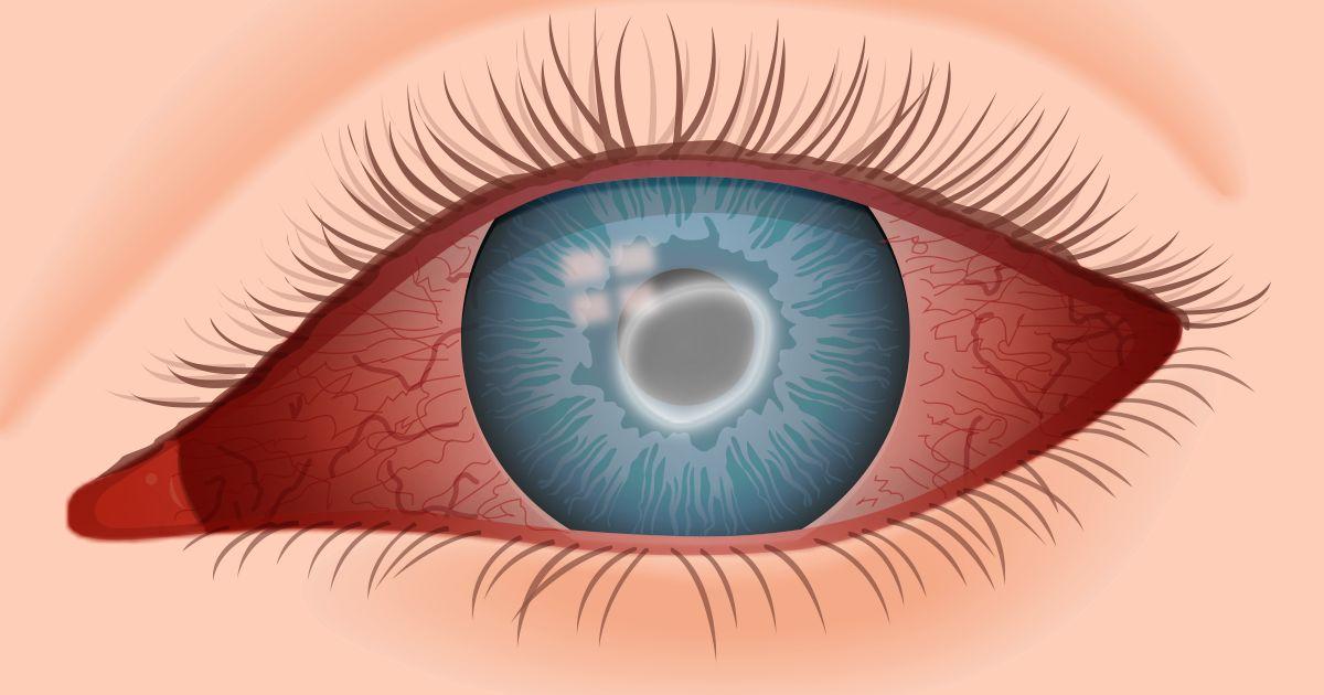 Ilustración de la queratitis por Acanthamoeba