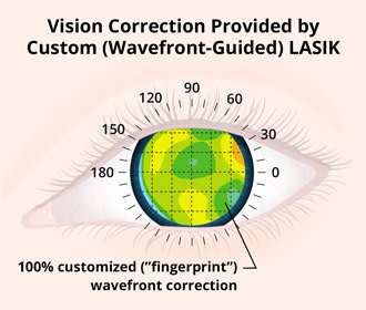 Vision Correction Provided by Custom (Wavefront-Guided) LASIK