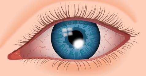 Иллюстрация глаза с язвой роговицы