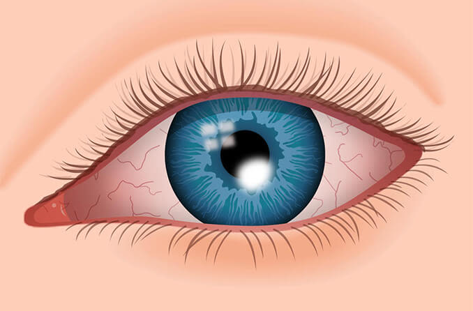 Illustration of eye with corneal ulcer